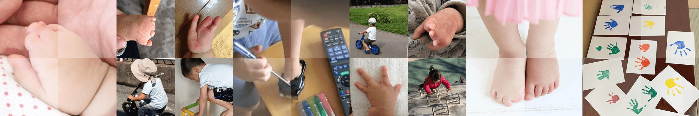 裂手裂足症・先天性絞扼輪症候群 イメージ画像